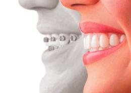 l'ostéopathie peut diminuer les effets indésirables de l'orthodontie et du traitement orthodontique