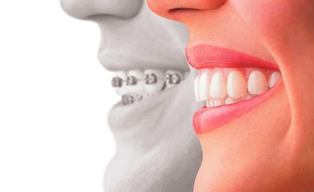 Ostéopathie et orthodontie deux thérapeutiques complémentaires!