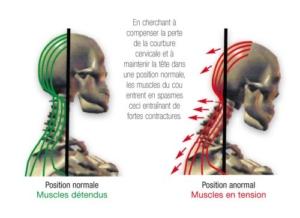Que faire en cas de torticolis, comment soigner et soulager le torticolis rapidement? L'ostéopathie peut-elle traiter les torticolis?