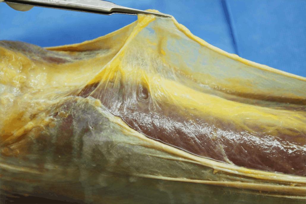 les techniques fasciales font parties des techniques ostéopathiques pour traiter le corps via les fascias et aponévrose